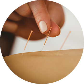 Custom Physical Therapy Acupuncture